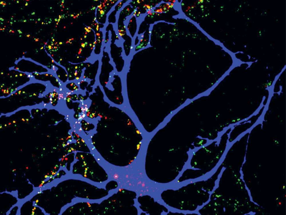 Study Pinpoints Autism Linked Protein >> Missed Connections